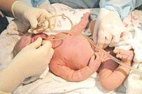 Hội chứng hít ối phân su ở trẻ sơ sinh