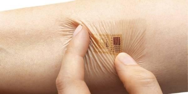 Chip máy vi tính cấy dưới da để ngừa thai vào năm 2018 - thiết bị vốn được xem là phát minh cách mạng trong lĩnh vực kế hoạch hóa gia đình.