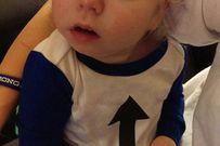 Cậu bé sinh ra với nửa hộp sọ chấn động thế giới bây giờ ra sao?