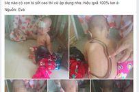 Dùng lươn bò lên người để hạ sốt cho trẻ đang gây sốc các bà mẹ bỉm sữa