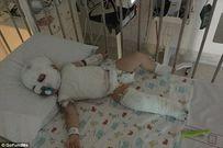 Bị nước sôi đổ trúng người khi đi du lịch, bé 17 tháng không còn khả năng nói và đi lại