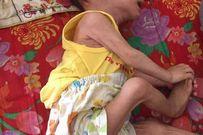 Xót xa hình ảnh em bé sinh ra nặng 4kg, sau một năm chỉ còn 3,4kg