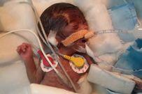 Sức sống kỳ diệu của bé sơ sinh nhỏ nhất thế giới, nặng chưa đầy 0,5kg khi chào đời