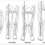 Nguyên nhân và cách chữa chân vòng kiềng ở trẻ nhỏ