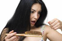 Rụng tóc nhiều ở nữ giới nguyên nhân và cách điều trị hiệu quả nhất