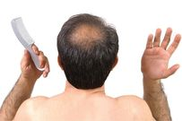 Rụng tóc nhiều ở nam giới nguyên nhân và cách điều trị
