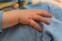 Cách chăm sóc trẻ bị tay chân miệng tại nhà mau khỏi bệnh tránh biến chứng nguy hiểm