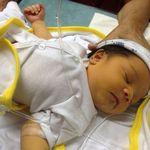 Giải đáp 7 câu hỏi thường gặp về vàng da ở trẻ sơ sinh mẹ nào cũng nên biết