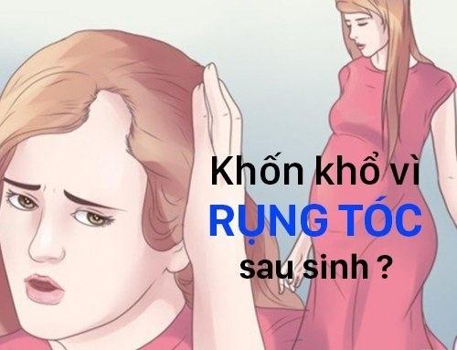 rung toc5