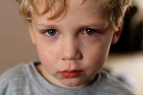 Thiếu Vitamin A và bệnh khô mắt ở trẻ em - mẹ chớ coi thường