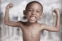 Hậu quả suy dinh dưỡng và cách phòng bệnh mẹ nên tham khảo