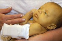 Bé bị vàng da và những điều cần biết để điều trị hiệu quả cho bé