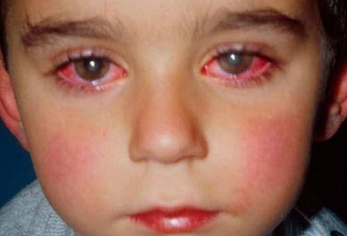 Bệnh mắt đỏ ở trẻ em và cách chăm sóc bé tại nhà