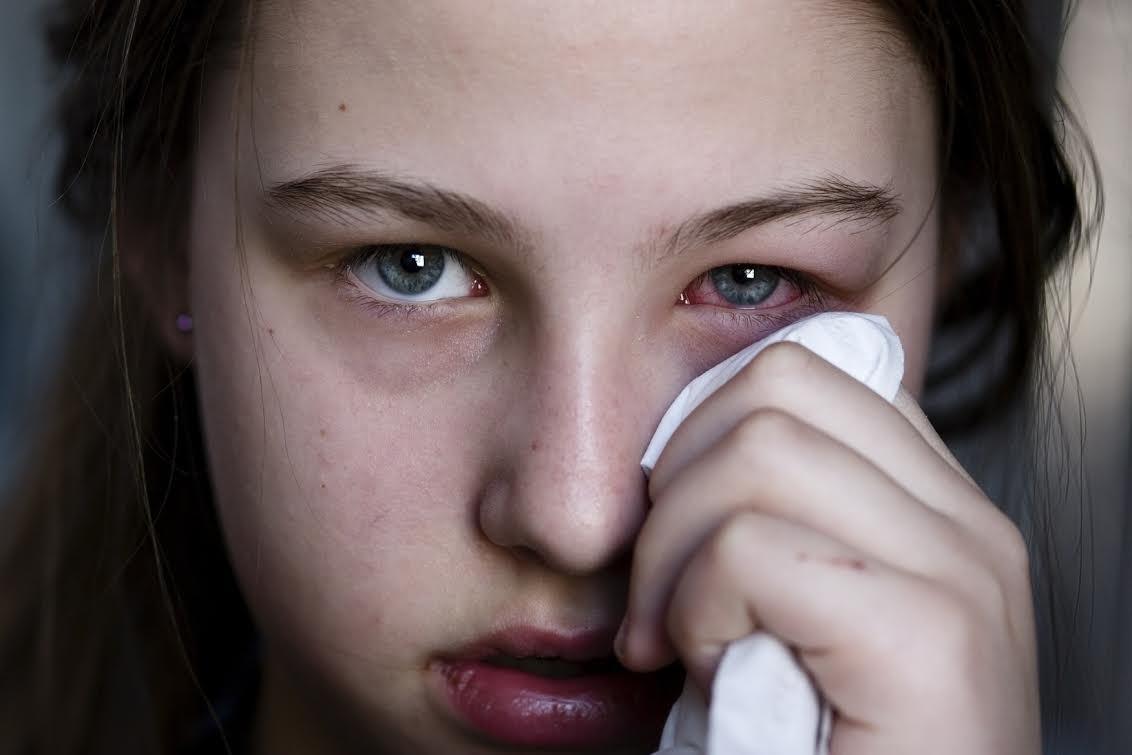 Trẻ bị đỏ mắt