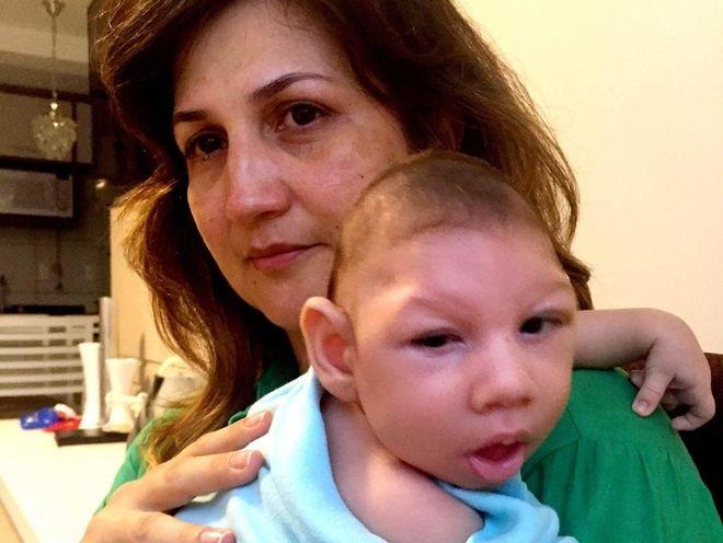 Em bé bị dị tật khi sinh