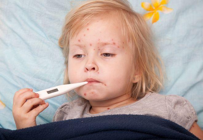 bệnh thủy đậu ở trẻ em