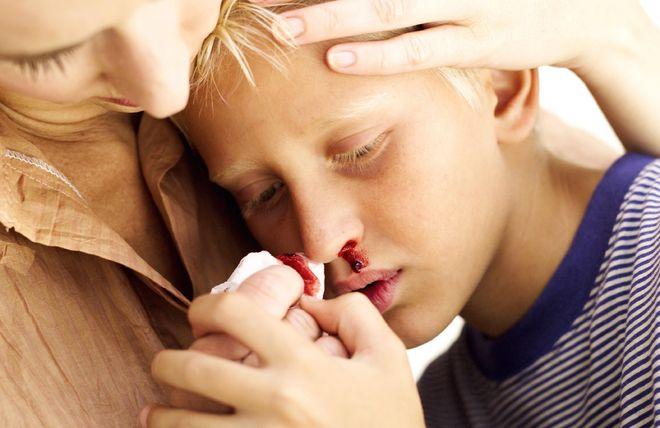 mẹ lau máu mũi cho bé