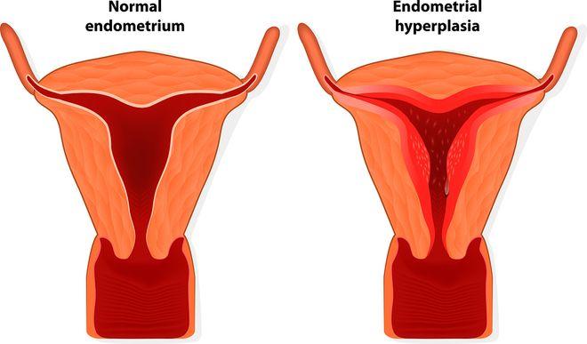 độ dày, mỏng của nội mạc tử cung cũng ảnh hưởng tới khả năng sinh sản của phụ nữ