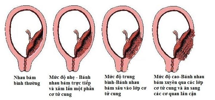 Nhau cài răng lược là một biến chứng phổ biến của mang thai sớm sau sinh mổ.