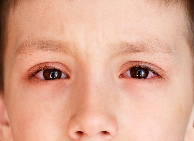 Kết quả hình ảnh cho trẻ bị đau mắt