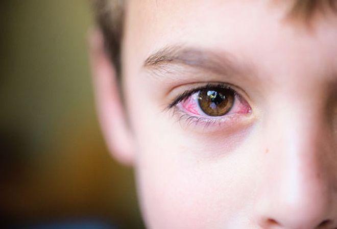 Bệnh đau mắt đỏ ở trẻ em thường sẽ bị ở một bên mắt trước khi lây sang mắt còn lại