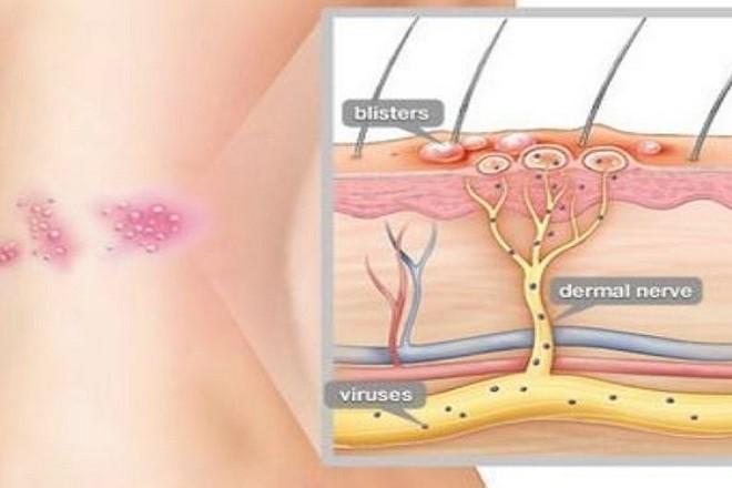 cấu trúc bệnh zona