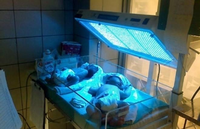 chiếu đèn điều trị cho bé bị vàng da