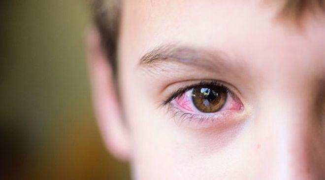 bé đau mắt đỏ