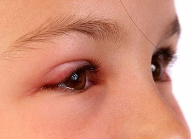 Bệnh viêm kết mạc mắt ở trẻ em là một bệnh dễ lây lan qua đường hô hấp