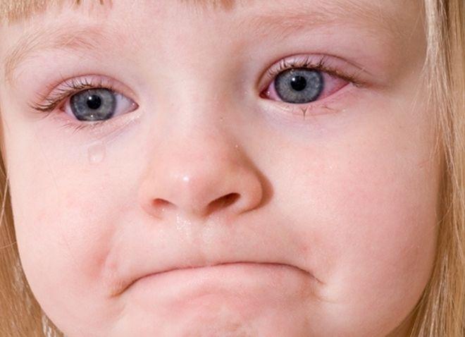 Trẻ bị viêm kết mạc mắt thường có biểu hiện đỏ mắt, ngứa mắt và mí mắt sưng phù