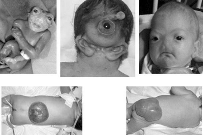 một số trường hợp dị tật bẩm sinh ở trẻ em