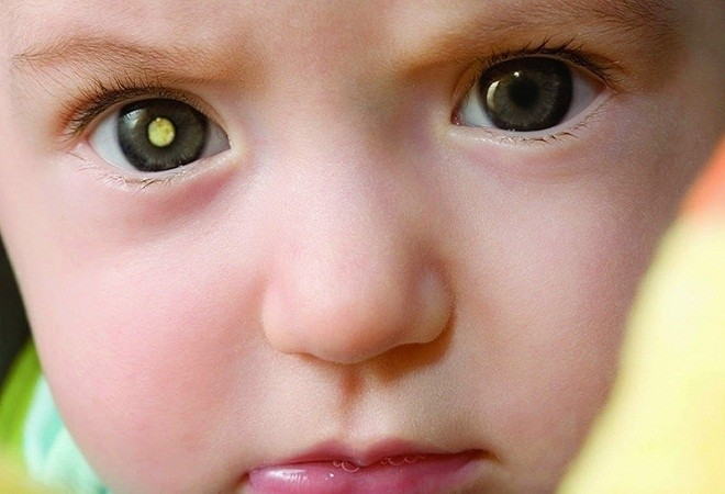 Đục thủy tinh thể bẩm sinh là một trong những bệnh về mắt ở trẻ em rất nguy hiểm
