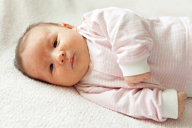 trẻ sơ sinh nằm nghiêng