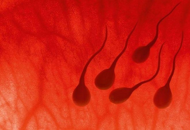rối loạn sinh tinh ở nam giới nguyên nhân hàng đầu gây vô sinh