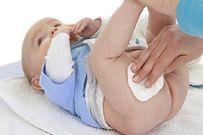 Cách chữa hăm cho tẻ sơ sinh - tất tần tật những điều mẹ nên biết