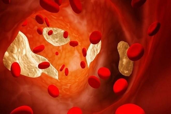 mô phỏng quá trình ứ dịch lỏng tử cung