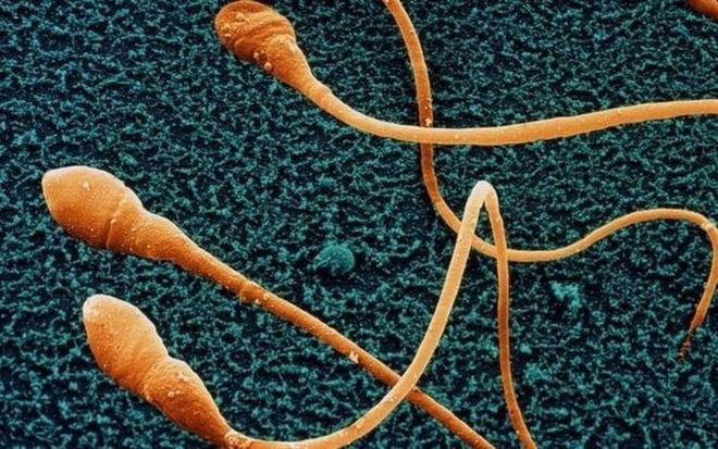 Tinh trùng bị dị dạng sẽ gây vô sinh.