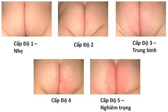 các cấp độ hăm da ở trẻ sơ sinh