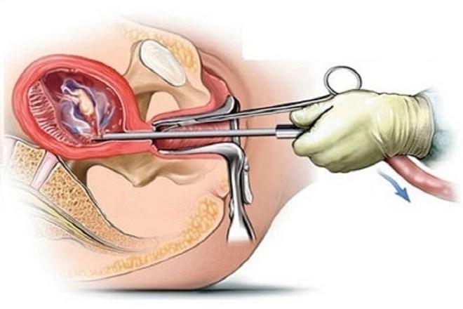 mô phỏng kĩ thuật nạo phá thai