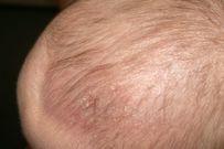 Cứt trâu ở trẻ sơ sinh và cách điều trị dứt điểm