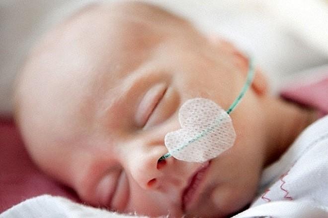 trẻ sơ sinh cắm ống thở