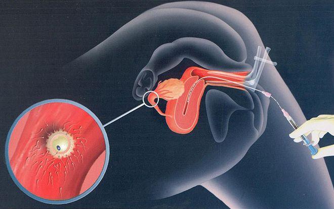 Bơm tinh trùng vào buồng tử cung (IUI) là phương pháp điều trị hiếm muộn dành cho các cặp vợ chồng vô sinh