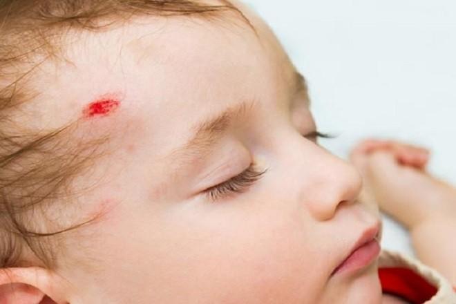 trẻ sơ sinh bị ngã đập đầu