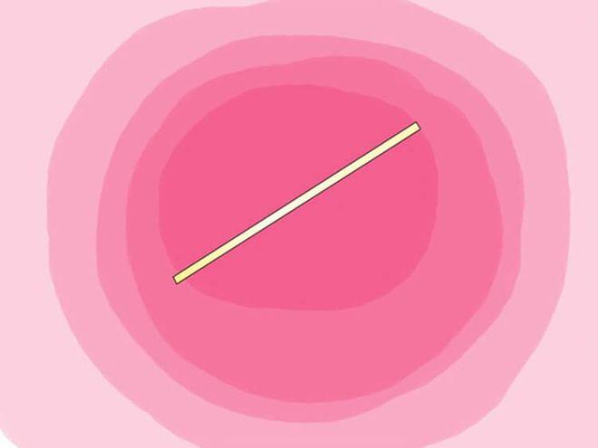 cấy que tránh thai có an toàn không