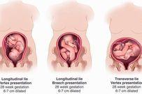 Chuyện thai nhi quay đầu và những thắc mắc của mẹ bầu