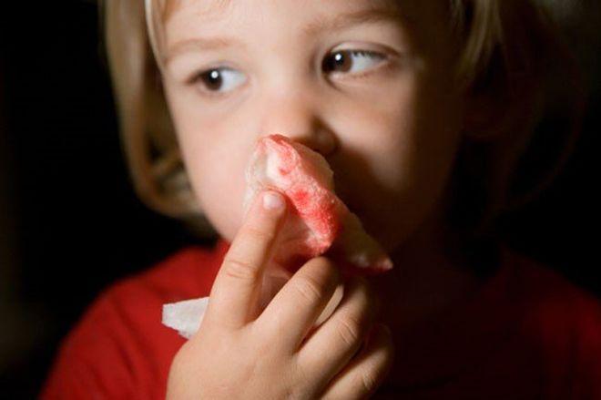 mũi có khối u là nguyên nhân gây ra bệnh chảy máu mũi ở trẻ em