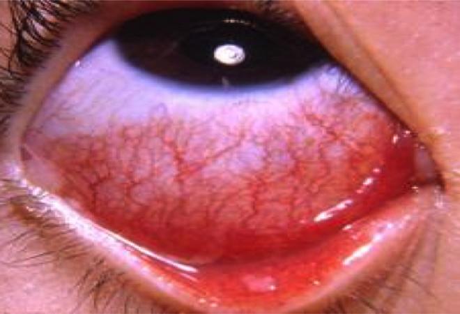 Biểu hiện đau mắt hột ở trẻ