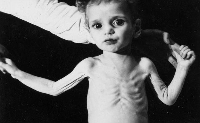 trẻ bị còi xương