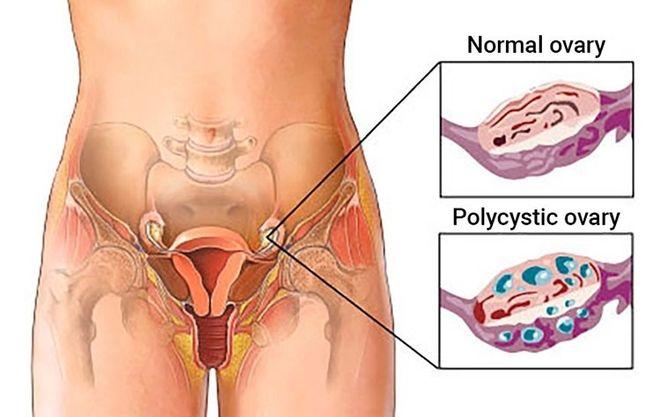 Việc kiểm tra chất lượng trứng ở phụ nữ sẽ giúp nhận biết chất lượng trứng mạnh hay yếu, nhỏ hay to