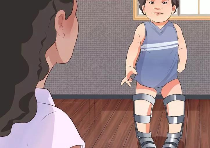 niềng chân là một trong những cách chữa chân vòng kiềng cho bé hiệu quả
